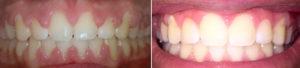 Gingival (Gum) Laser recontouring - before & after