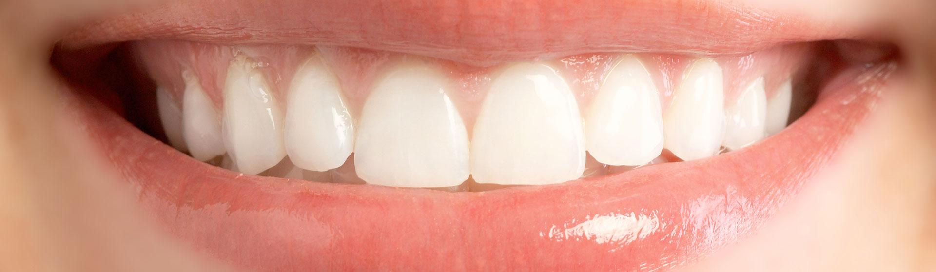 Gum Laser Recontouring