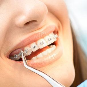 Why Choose Orthodontics